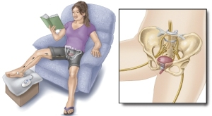 Tibial-Nerve-Therapy