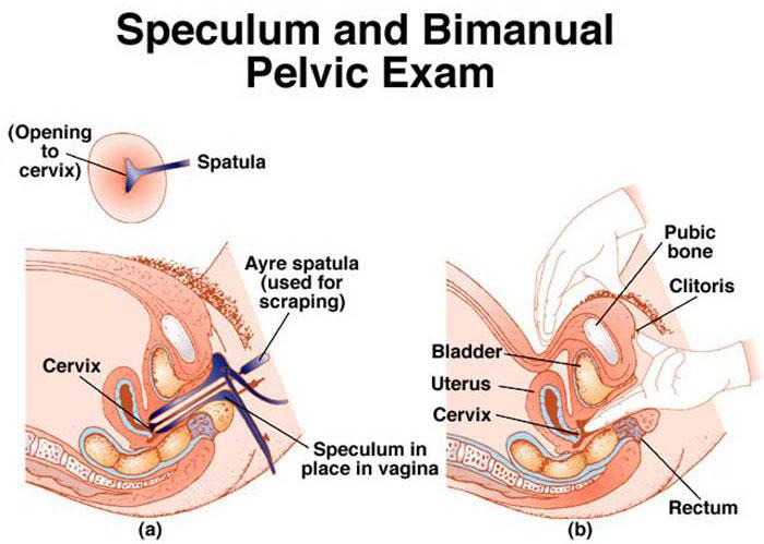 pelvic-exam