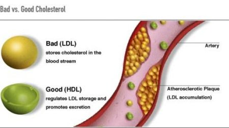 LDL-vs-HDL-artery