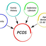 Polycystic Ovarian Syndrome potential causes