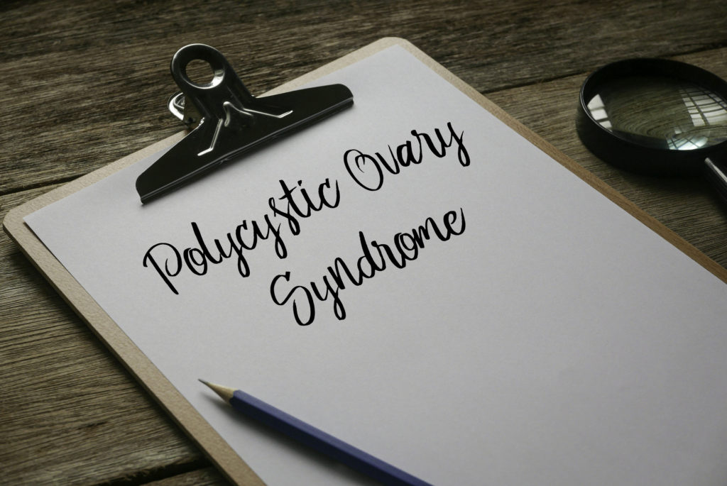 Magnifying glass, pencil and clipboard with white paper written with Polycystic Ovary Syndrome on wooden background.
