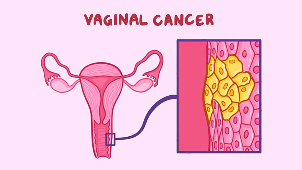 vaginal cancer title & graphic